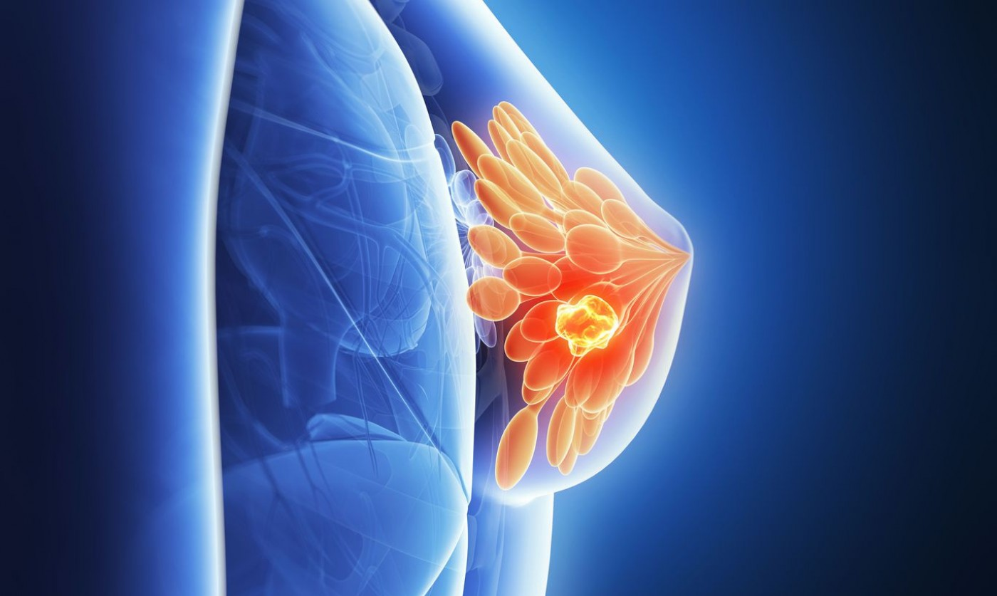 Мастопатия молочной железы – симптомы и диагностика. Как лечить мастопатию?