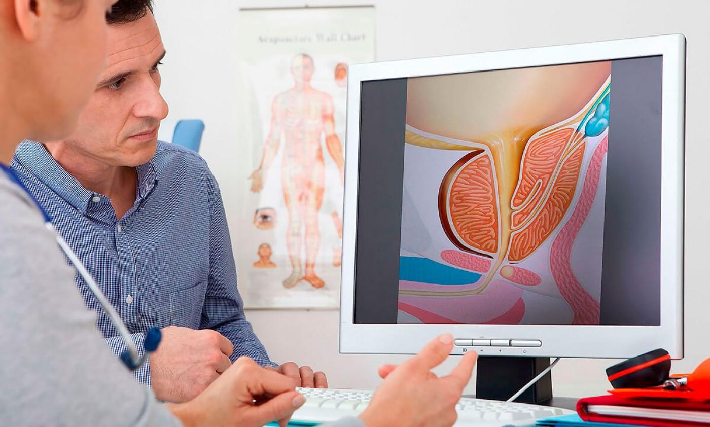 Лечение простатита у мужчин, планирующих зачатие